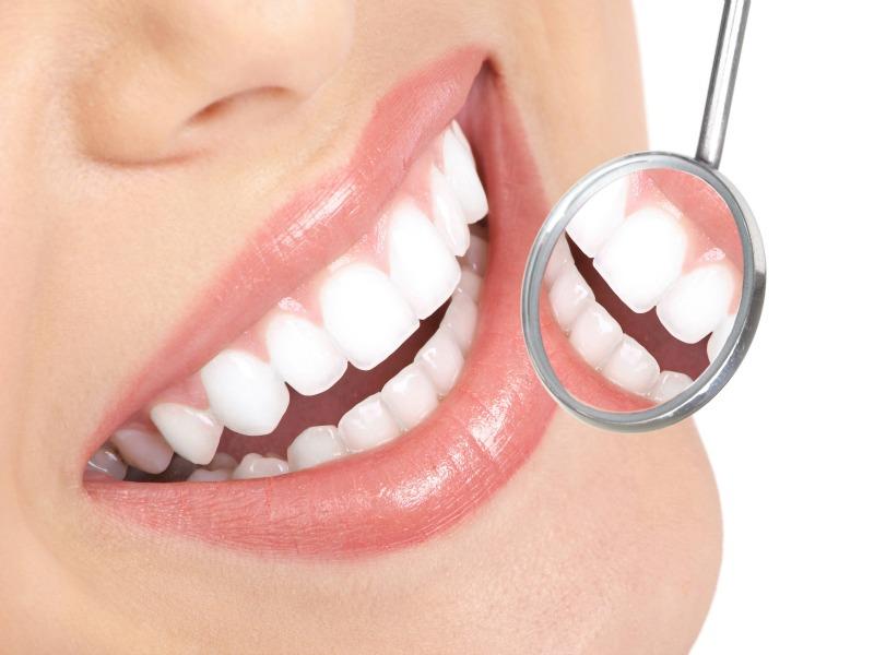Bakal Pengantin Jangan Abaikan Penjagaan Gigi Anda