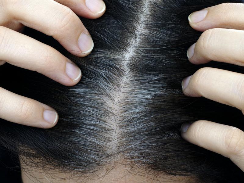 Punca & Cara Atasi Rambut Beruban Di Usia Muda